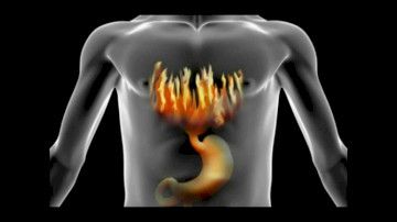 How To Treat Heartburn