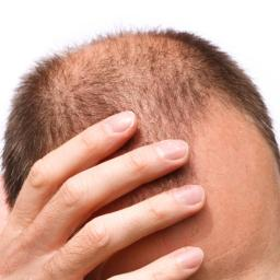 Supplements For Thinning And Falling Out Of Hair