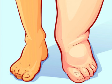 Does Oxycodone Cause Leg Swelling?