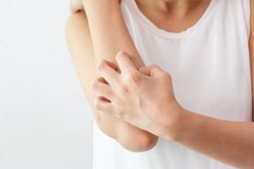 Does Tagamet (Cimetidine) Work For Allergies?