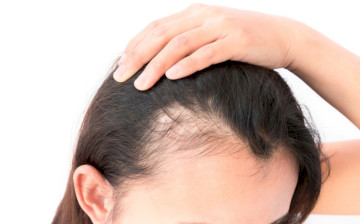 Does Omeprazole Cause Hair Loss?
