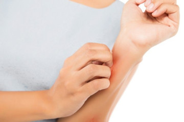 What Is The Best Anthistamine For Itching?