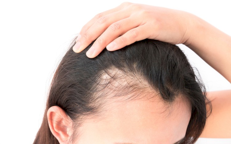 Women Pulling Hair Back Revealing Hair Loss